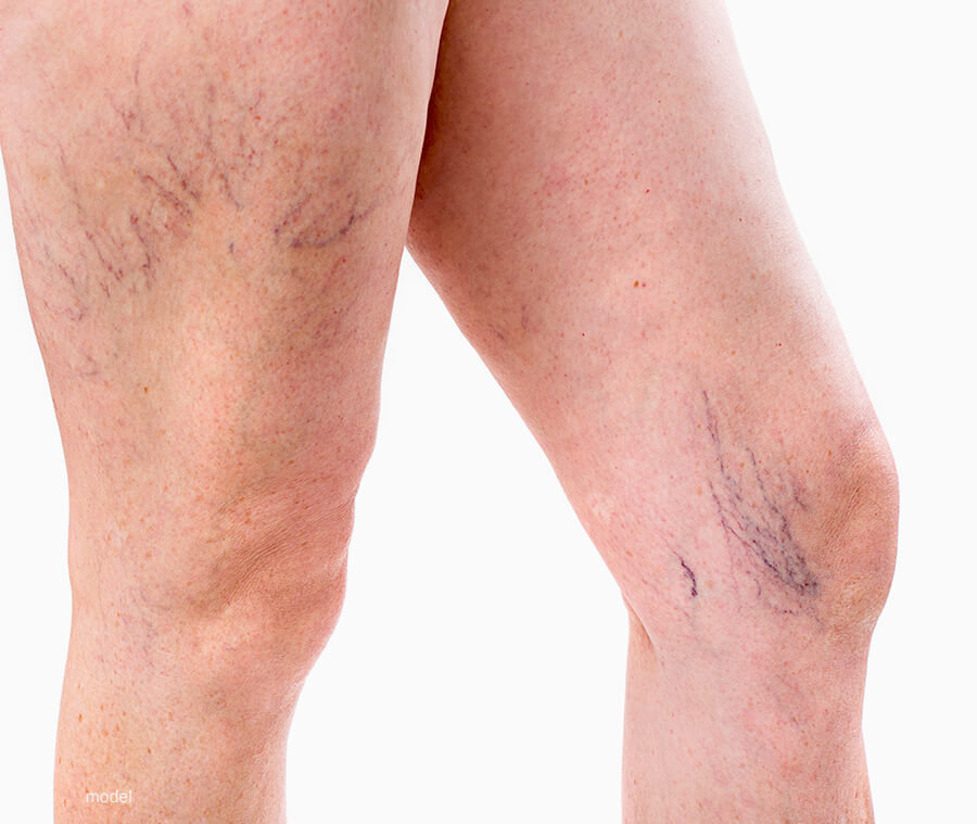 Laser Vessel Removal - Los Angeles, CA | Sand Institute