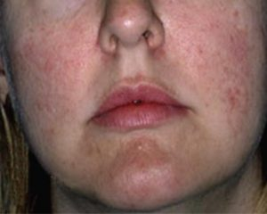 female skin texture after IPL treatment