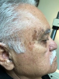 male before pigment removal