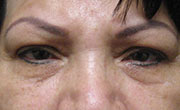 Lower eye lid bags removal Patient 2 Before