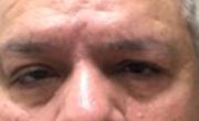 Upper Eyelid Lift  Patient 2 Before