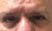 Upper Eyelid Lift  Patient 2 After