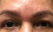 Upper Eyelid Lift Patient 3 After