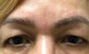 Upper Eyelid Lift Patient 3 Before