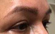 Upper Eyelid Lift Patient 5 After