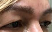 Upper Eyelid Lift Patient 5 Before