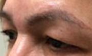 Upper Eyelid Lift Patient 4 Before